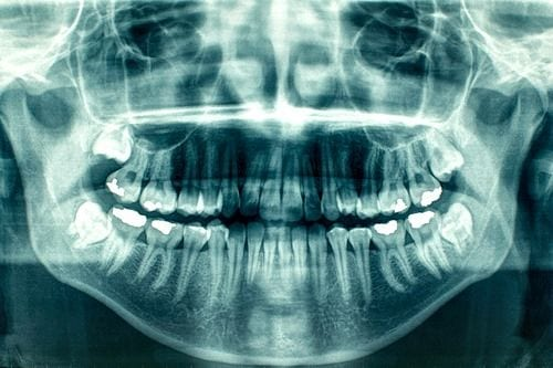 dental-xray-mt-waverley