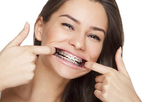 adult-braces-mt-waverley