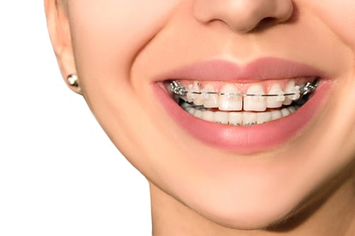 clear-braces-mt-waverley