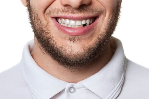 cracked-teeth-treatment-mt-waverley