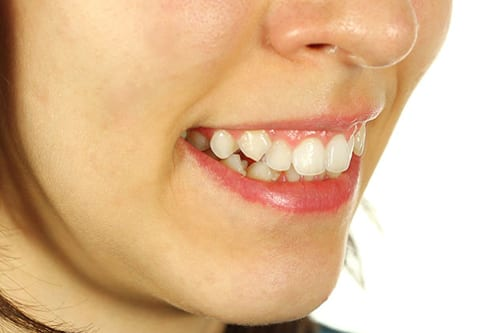 crooked-teeth-treatment-mt-waverley