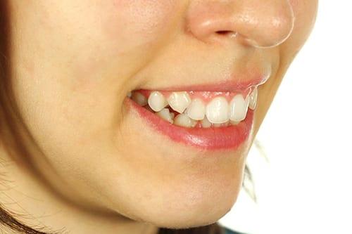 crooked-teeth-treatment-mt-waverley