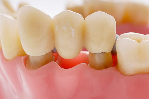 a;ternative options to dental implants crowns-bridges-mt-waverley