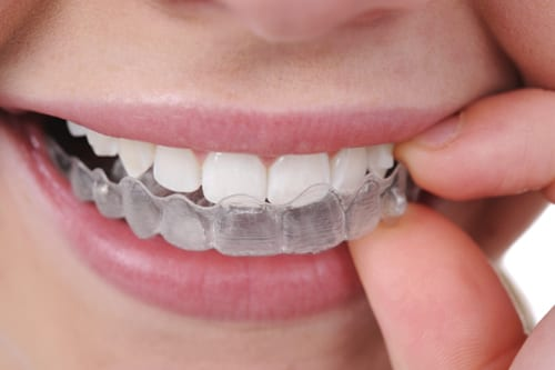 invisalign clear braces-mt-waverley