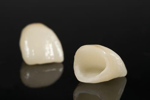 dental-metal-free-crown