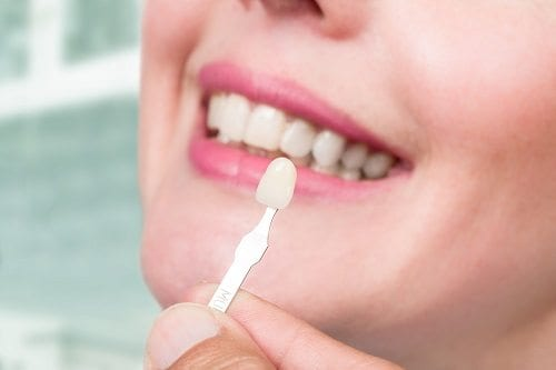 veneers-mt-waverley