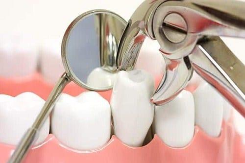 wisdom teeth extration