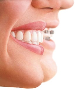 No braces teeth straightening