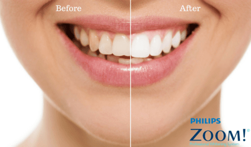 Zoom Teeth Whitening Mt Waverley Dentist 330