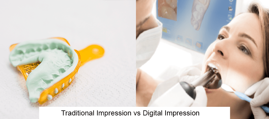 traditional vs digital dental impression